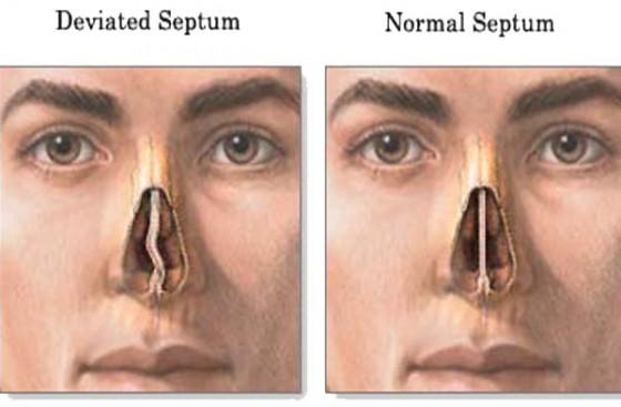 septum diagram e1356747630889 560x367