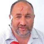 The Badass Story of Blazo Grkovic (The Guy Who Strangled a Bear)